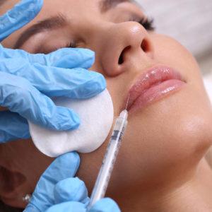 relleno arrugas acido hialuronico torrent